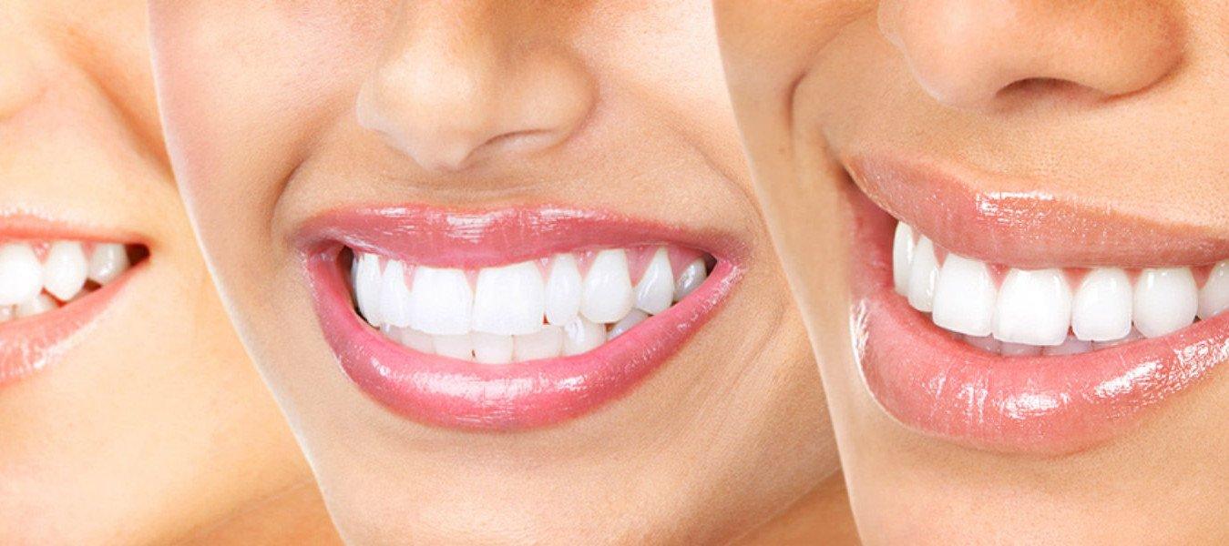 Fordeler ved tannbleking hjemme