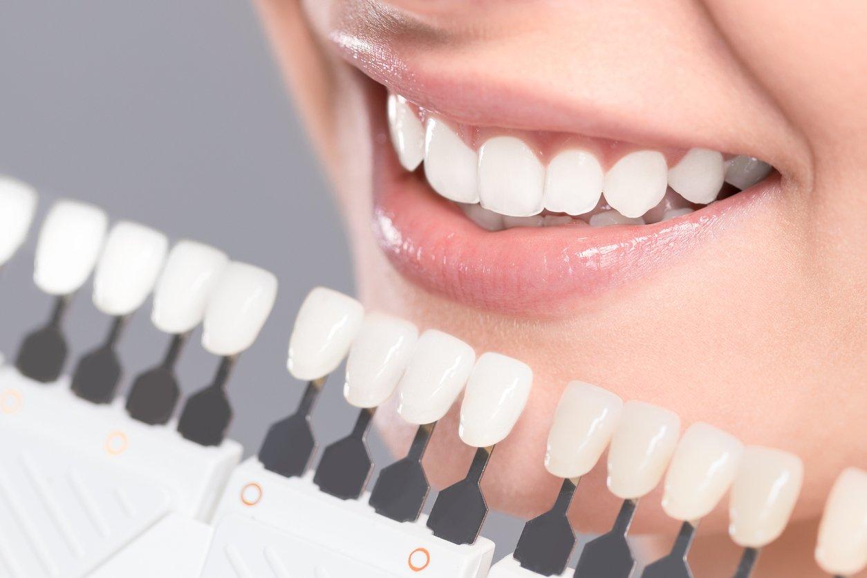 Hvite tenner og tannbleking